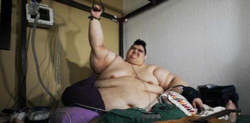 El hombre más obeso del mundo pesa 1300 libras:...