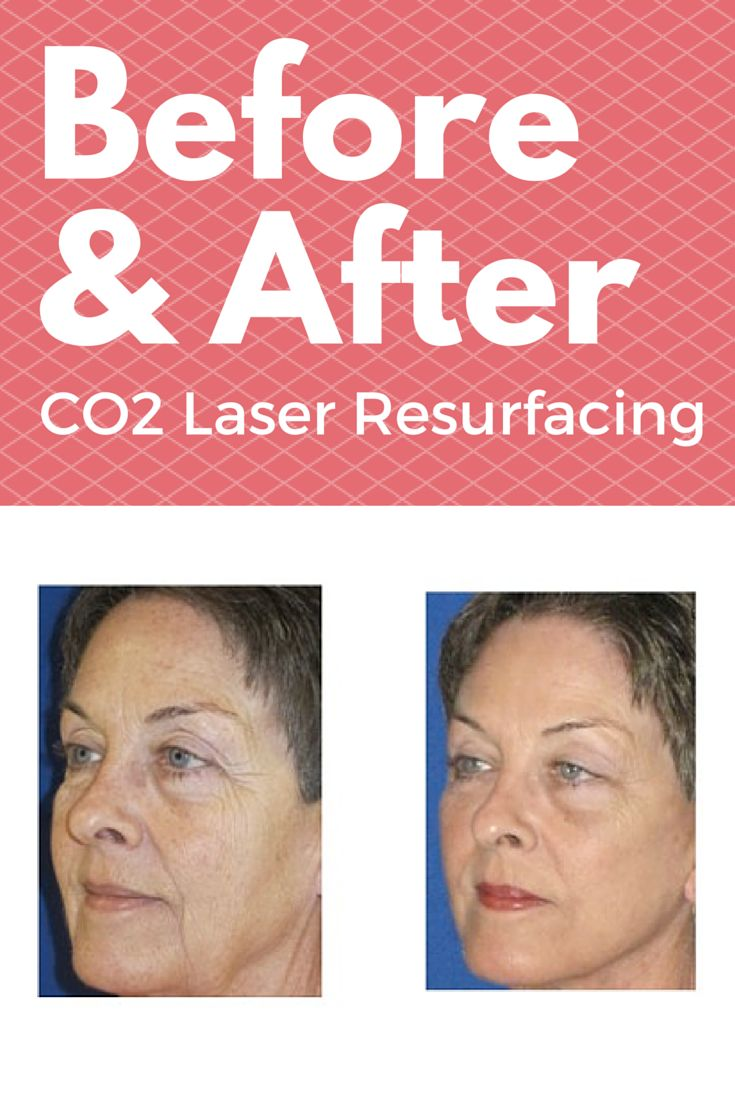 CO2 laser resurfacing is indicated for restoration of a smoother, more youthful appearance to the skin.  The laser vaporizes portions of the outermost layers of the skin resulting in a smoother surface with more homogenous pigmentation.  It also stimulates collagen production within the dermis of the skin, which tightens the skin and restores elasticity.