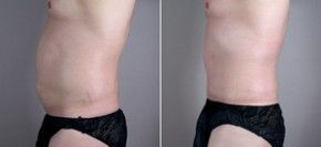 Tummy Tuck Before And After pictures are remarkably clear even to untrained eyes
