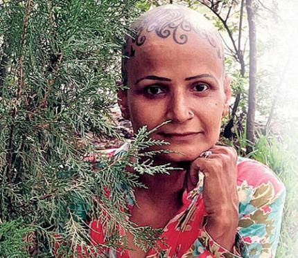 Bald is beautiful. Ketaki Jani, who lost her hair to alopecia, has become the first finalist to make it to the Mrs India Internatonal beauty pageant.