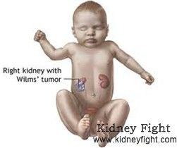 What is Wilms' Tumor Wilms' Tumor, also known as nephroblastoma, is the most common abdominal malignant tumor in children. Here, you can have a general understanding about this type of #kidney tumor. http://www.kidneyfight.com/kidney--tumor-basics/417.html