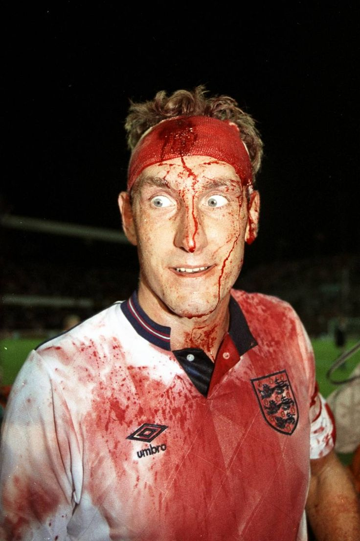 Former England footballer Terry Butcher after continuing the England vs. Sweden match in 1989