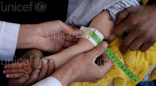 Quase 70 milhões de crianças morrerão antes de 5 anos em 2030
