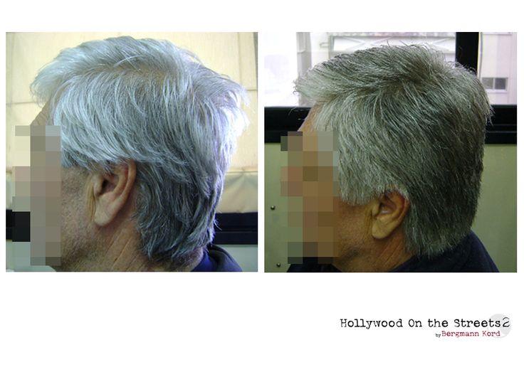 www.hos2.gr Αποκατάσταση μαλλιών μετά τις χημειοθεραπείες στους ογκολογικούς ασθενείς HOS-2.