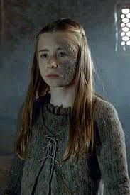 Princess Shireen Baratheon  is the daughter of Stannis and Selyse Baratheon. Her father is the head of House Baratheon of Dragonstone and has declared himself King on the Iron Throne. Shireen is Stannis's only living child and therefore his heir presumptive. The left side of her face is scarred by Greyscale.