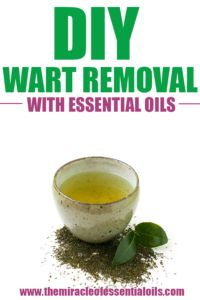 DIY Wart Remover with Essential Oils and Apple Cider VinegarMark Petrkov