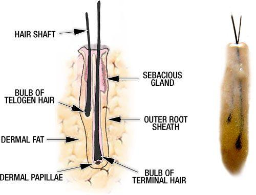 Hair Transplant Technique : Follicular unit hair grafting