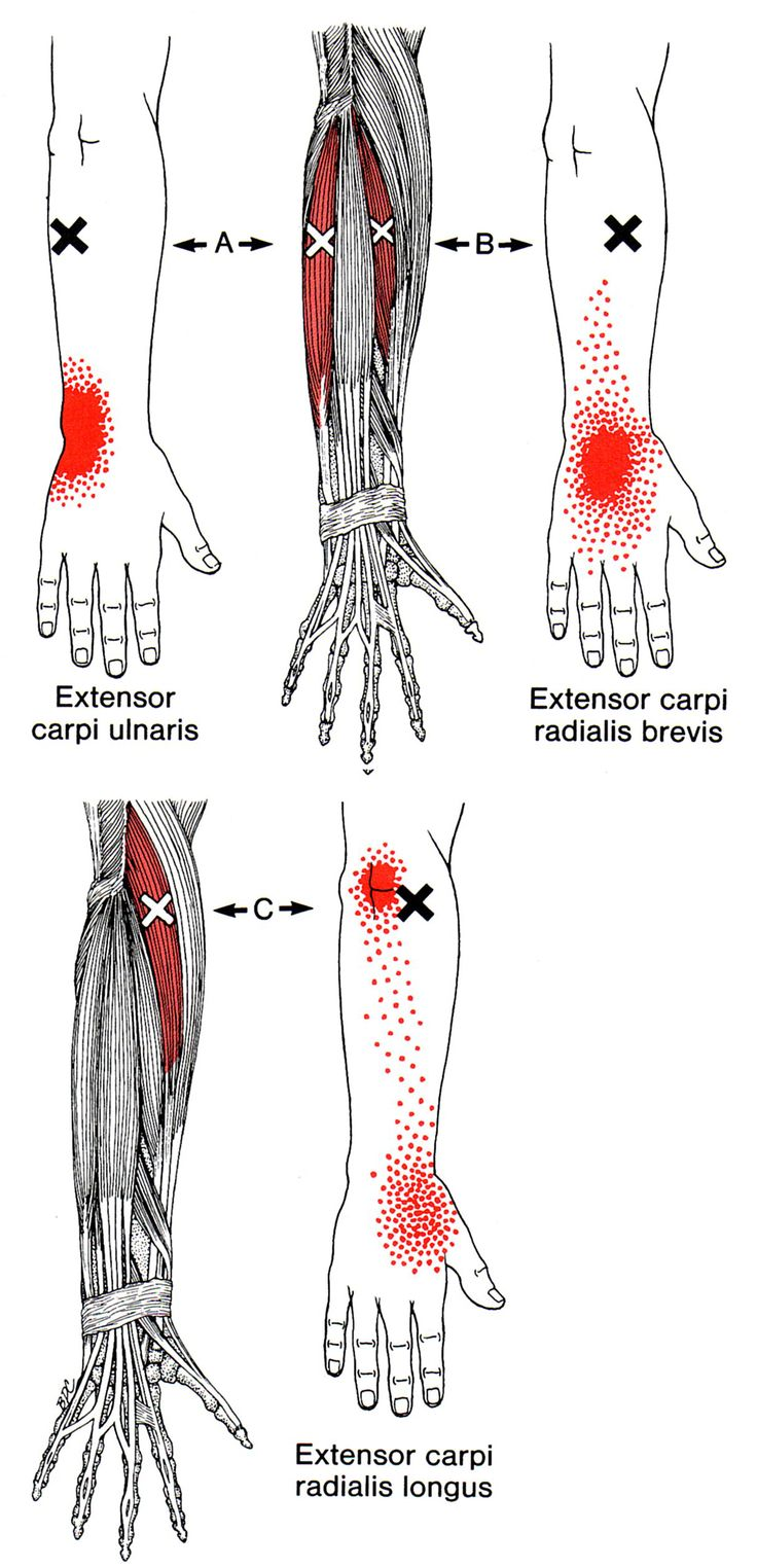 Extensor Carpi Radialis Longus | The Trigger Point & Referred Pain Guide