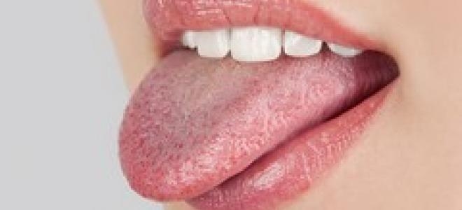 Blanche, sèche, noire, épaisse... La couleur et l'aspect de votre langue en dit long sur votre santé ! Mycose, anémie, herpès, maladie de peau... Révélations avec le Dr Xavier Pouyat, stomatologue.