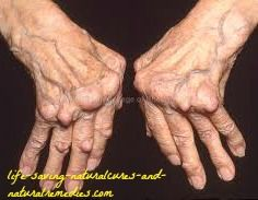 Here's the astonishing arthritis relief remedy & cure that's been kept hidden from the general public for over 50 years... until now!