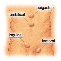 Hernia, diagnostic si tratament.