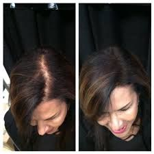 Pleasant 17 Best Images About Hair Loss Info For Men And Women With Short Hairstyles Gunalazisus