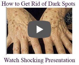 remove dark spot. Beverly Hills MD Dark Spot Corrector combines the natural healing power of the Kakadu Plum with safe,