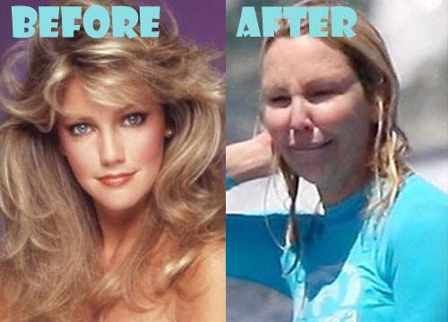 Heather Locklear Plastic Surgery Gone Wrong Plastic