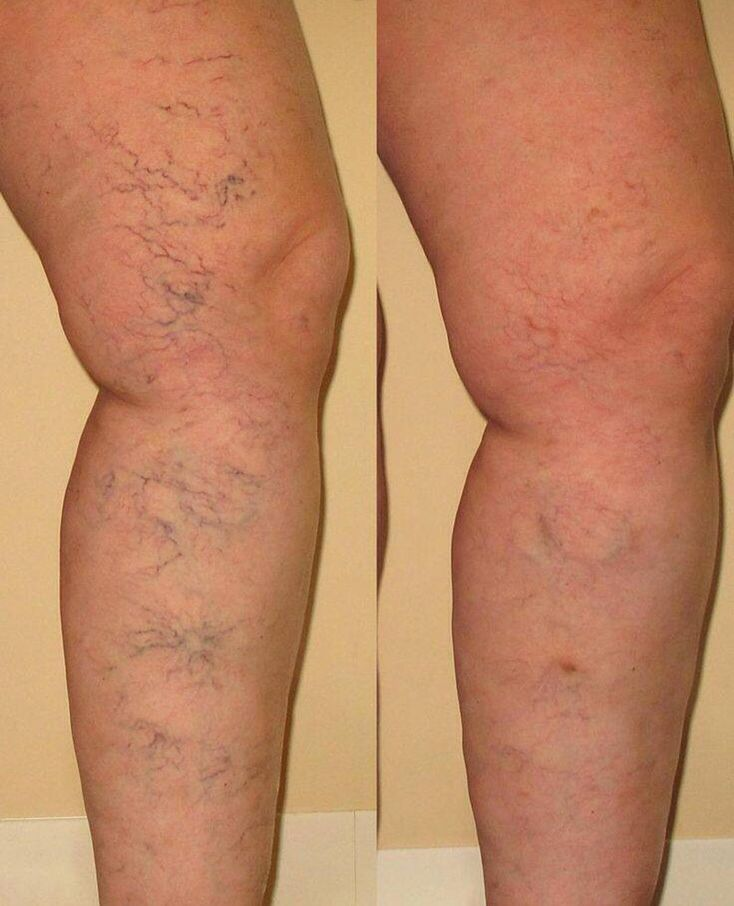 Nerium strikes again!!! Bye bye veiny thigh. #nerium #neriumfirm #livehappy www.agro30.theneriumlook.com