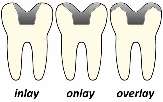 Inlay, Onlay & Overlay   #Dentaltown #PatientEducation Ideas