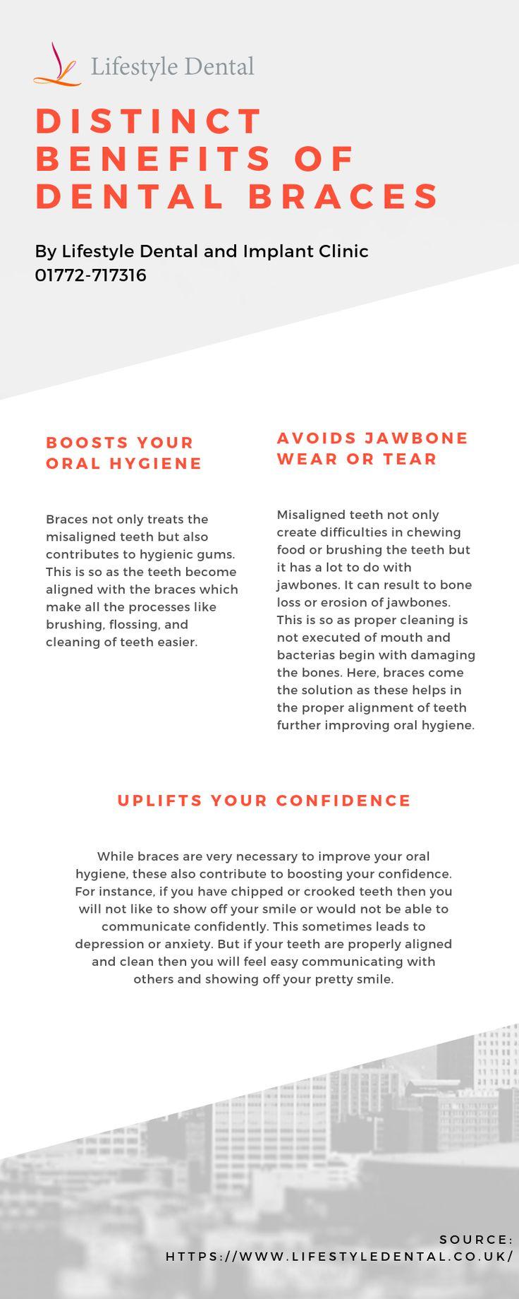 Distinct Benefits Of Dental Braces (With images) Dental