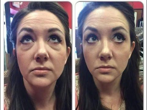 Bekki Hurley - Having FUN with Instantly Ageless! - YouTube