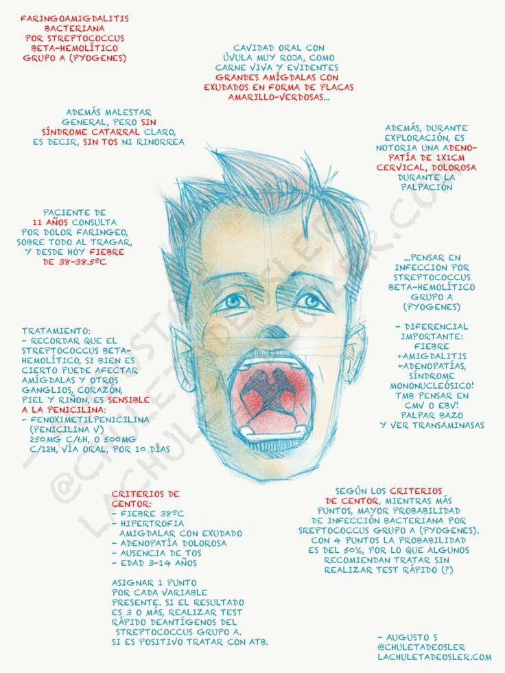 Faringoamigdalitis bacteriana por streptococcus beta-hemolitico grupo A(pyogenes)  Fuente: lachuletadeosler.com