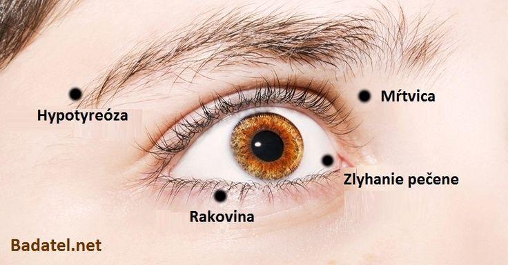Hovorí sa, že oči sú bránou do duše. No naznačujú i rôzne zdravotné ochorenia. Pozrite si 8 ochorení očí, ktoré sú príčinou iných problémov.