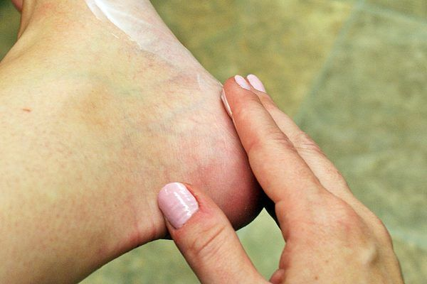 Hard skin on your feet can be ugly and embarrassing. It may also be painful. It needs to be removed to allow for comfortable walking. A nice pedicure would do the trick, but they can be expensive. Hard skin on feet is not hard to remove at home using a few simple tricks and tools.