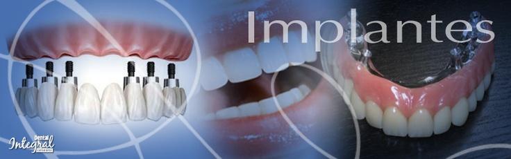 Implantes  Son aditamentos metálicos de titanio, que funcionan como raíces artificiales y que se colocan quirúrgicamente en el maxilar o la mandíbula. Representan la mejor alternativa estética, anatómica y funcional para el reemplazo de los dientes perdidos, con los mejores resultados estéticos, de comodidad y durabilidad