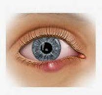 избавиться от ячменя на глазу, как вылечить ячмень на глазу, как лечить ячмень на глазу, как лечить ячмень под глазом, корень лопуха, на глазу ячмень что делать, народное лечение ячменя на глазу, ячмень на глазу, ячмень на глазу лечение, ячмень на глазу народные средства