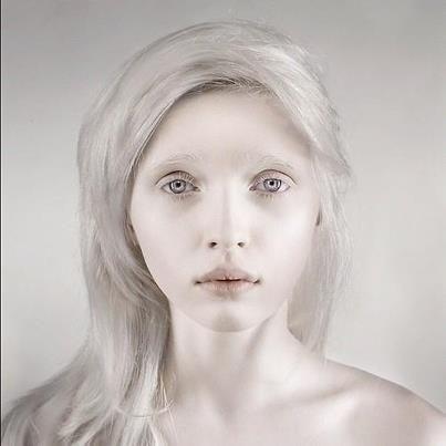 Um exemplo de epistasia é o albinismo.