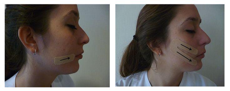 Vendaje neuromuscular para aumentar el tono de la musculatura facial