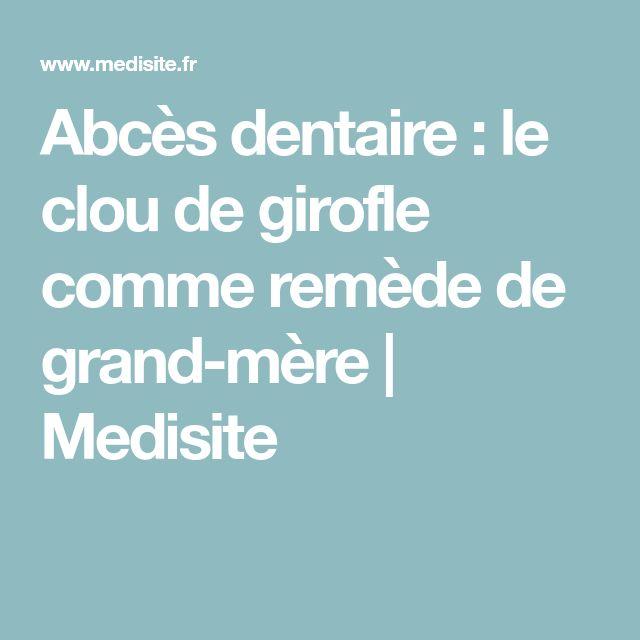 Abcès dentaire : le clou de girofle comme remède de grand-mère | Medisite