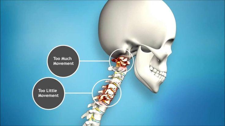 Chiropractor Roodepoort https://youtu.be/-Raqnkm8ja8