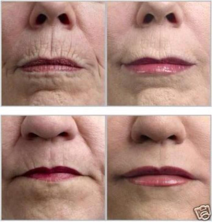 2 awesome before and after shots..using Luminesce by Jeunesse anti-aging