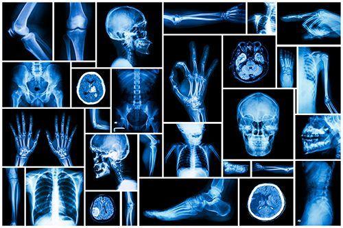 Pin On Tecnico Radiologo