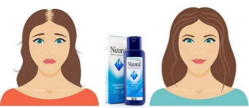 nizoral for hair loss