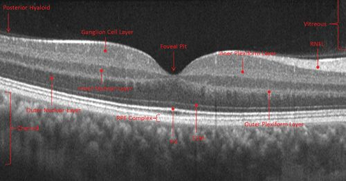 Review of Optometry® > The ABCs of OCT