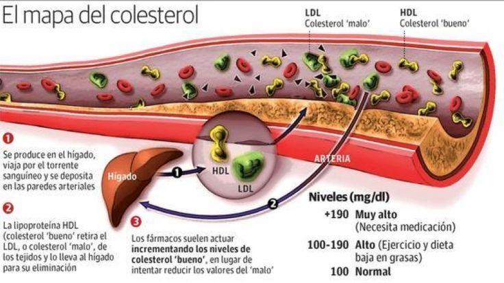 La presión arterial alta y los niveles de colesterol son las principales causas de problemas cardiovasculares y cardíacos como el accid...