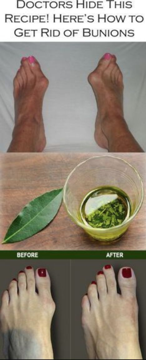 Doctors Never Tells, How to Get Rid of Bunions Completely Naturally – Toned