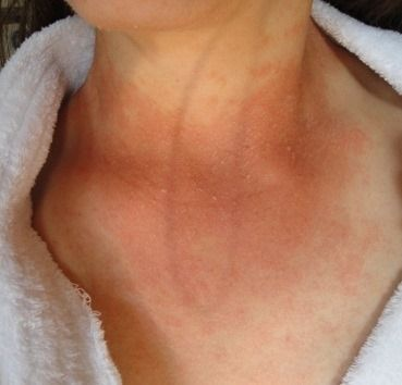 itchy flaky candida rash moved around my neck to my chest