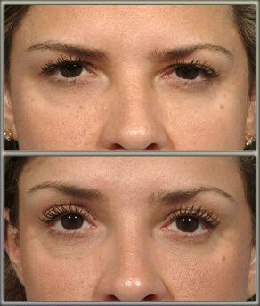 botox brow lift