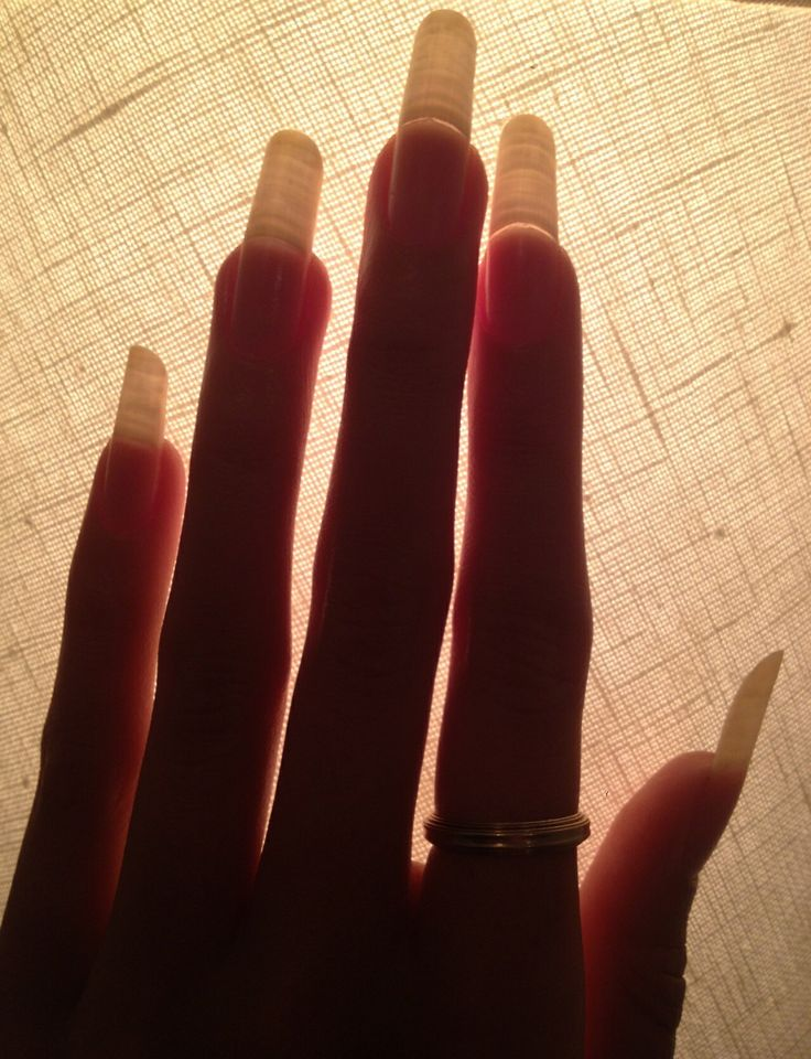 Best 31 greasy nails. images on Pinterest | Weird, Funny images and ...