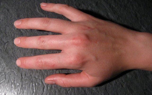 Fibromyalgia Symptoms Pressure Points ** Visit the image link more details.