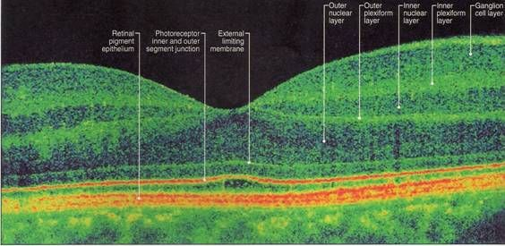 OCT Scan Of A Healthy Retina