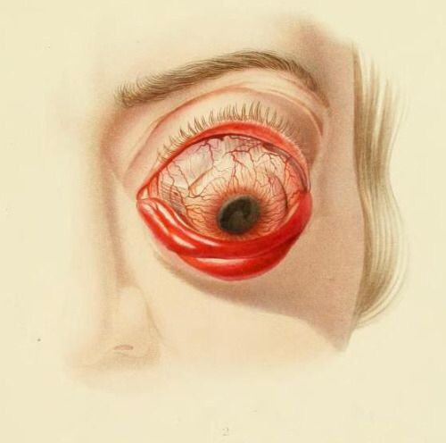 Exophthalamos of the left eye