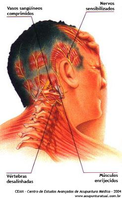 myofascial trigger points | ... . --- Myofascial Pain and Trigger-points: What is there to be known