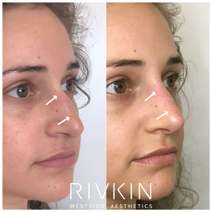 Dr. Rivkin's Non Surgical Nose Job nsnj