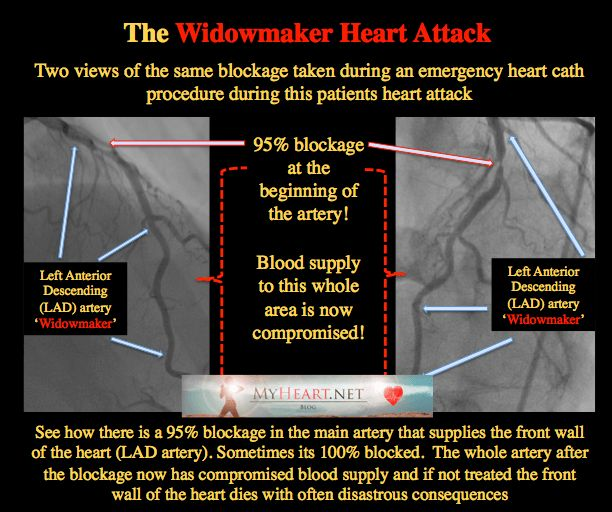 The Widowmaker Part II –Heart Hanging by a String