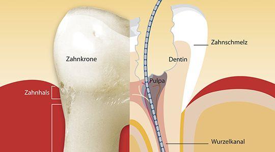Gewebe bis in die Tiefe exakt entfernen  Dann wird das gesamte Gewebe bis zur Wurzelspitze entfernt. Hierzu setzt der Zahnarzt sehr feine Instrumente ein, die  sehr flexibel sind.