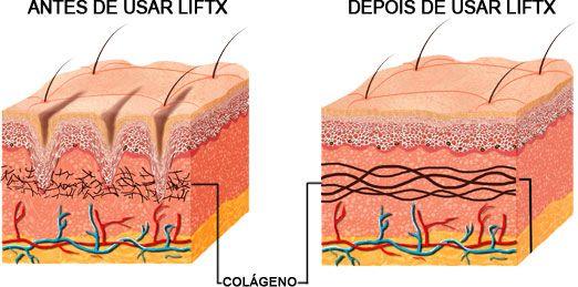 antes de usar LitX / Depois de usar Lift-X