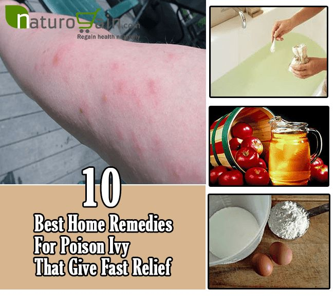 Poison Ivy Rash Treatments Natural