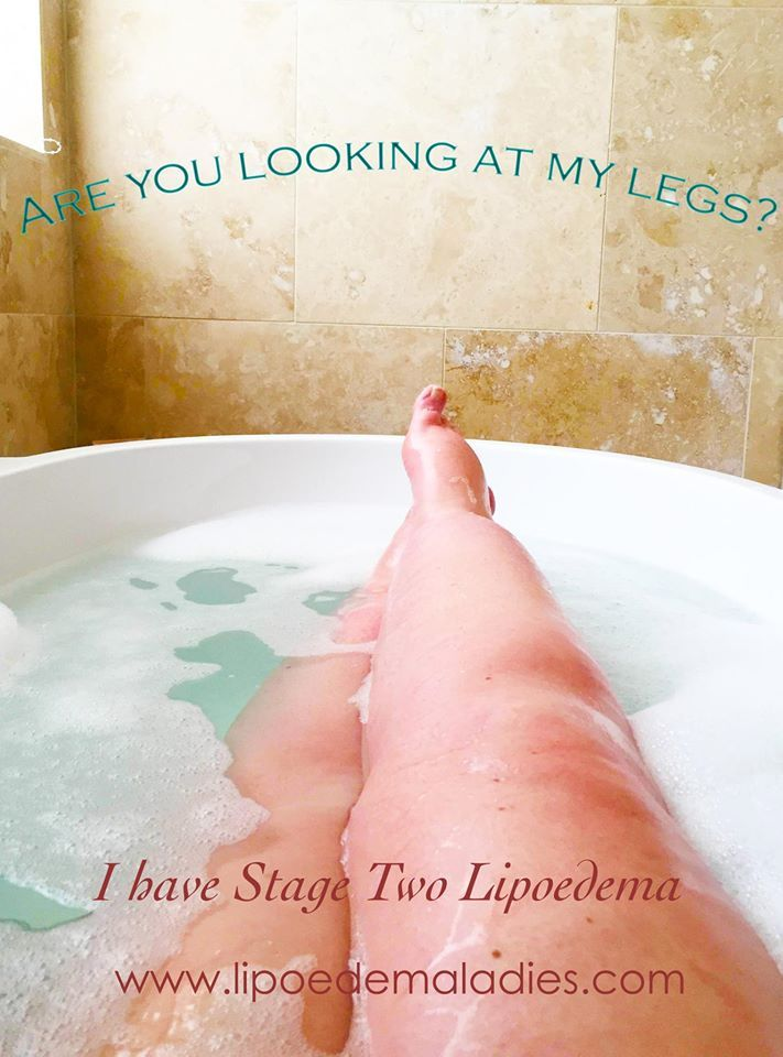 The 25 Best Leg Lymphedema Ideas On Pinterest Lymphatic